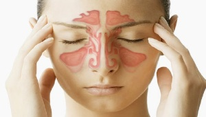 سینوزیت حاد Acute Sinusitis Deasease
